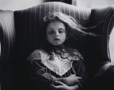 Sally-Mann-Black-Eye-1991