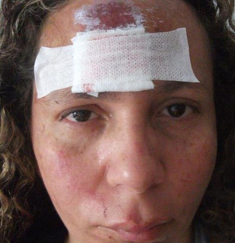 Sofri um acidente:(( by Irene Sarranheira