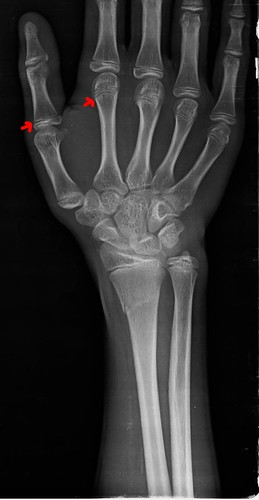 13歲人類的骨頭