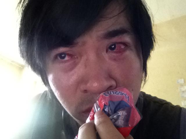 Steven Lim with injured eyes (image via Steven Lim's Facebook page)