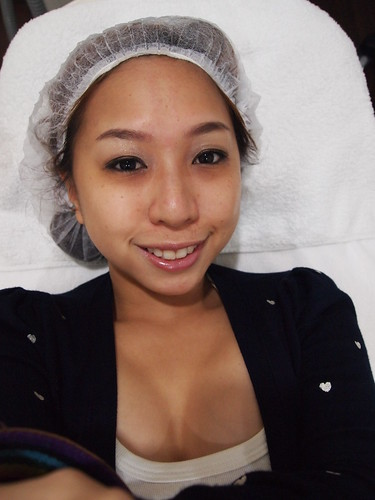 Singapore Lifestyle Blog, nadnut, Singapore blogger, Fillers, nadnut fillers, EHA Clinic, Dermal fillers, Stylage fillers, Dr Elias Tam, Dr Elias Tam review, Stylage fillers review, Dermal fillers review, EHA Clinic review, How to remove eyebags?