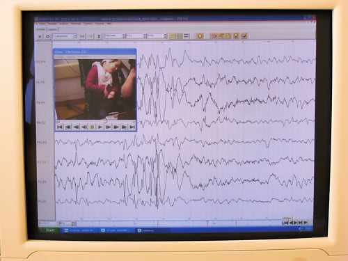 EEG-Ausschnitt