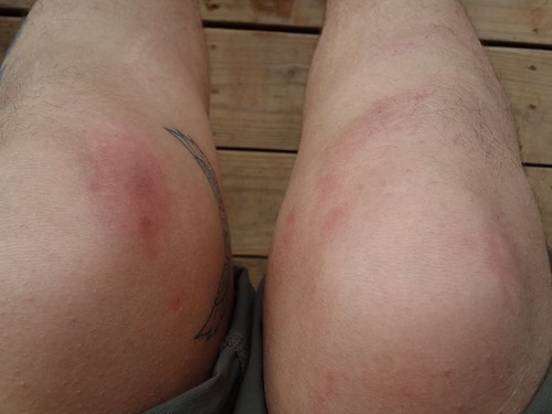 Thank goodness for Dainese knee protectors, could have been much worse