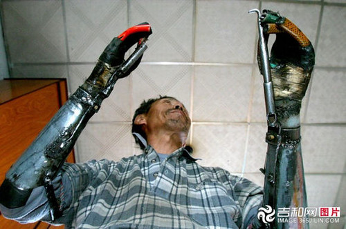 chinese_man_builds_himself_bionic_hands_from_scrap_metal_640_16