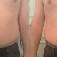 My 3D Lipo Non-Surgical Fat Removing Experience