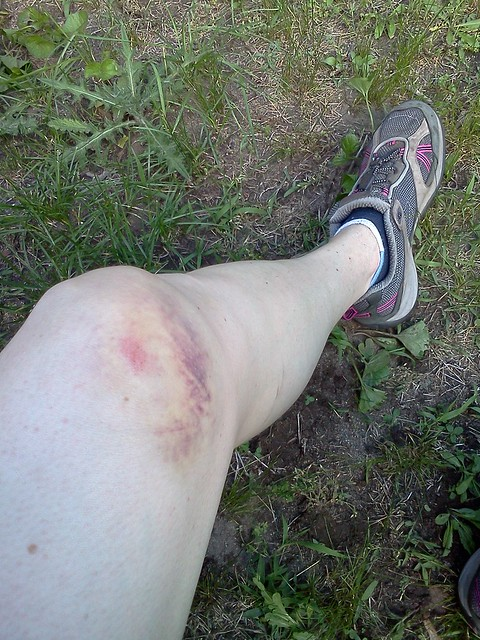 My left knee three days after a slight tangle with a tree and handlebars on a DR350.