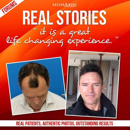 hair-transplant-real-story-1-fb