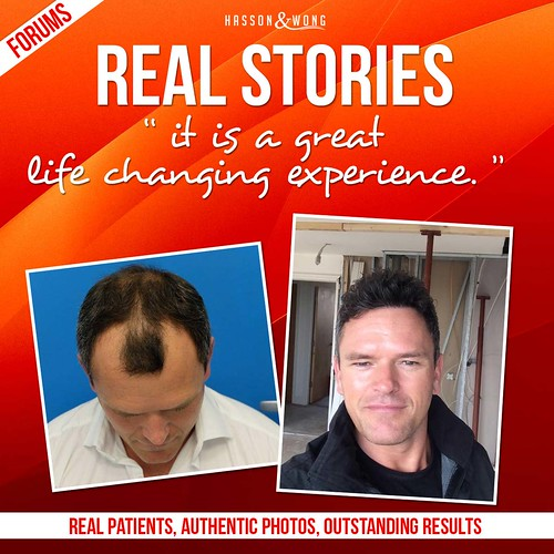 hair-transplant-real-story-1-fb