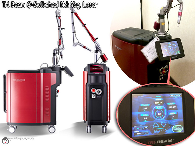 Q Switch Laser Treatment 7