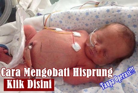 Cara Mengobati Penyakit Hirschsprung Atau Hisprung Pada Bayi Tanpa Operasi