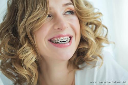 HEBOH, Inilah Hukum Menggunakan Kawat Gigi