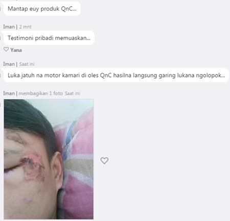 Kesaksia QnC Jelly Gamat atasi bekas luka bakar