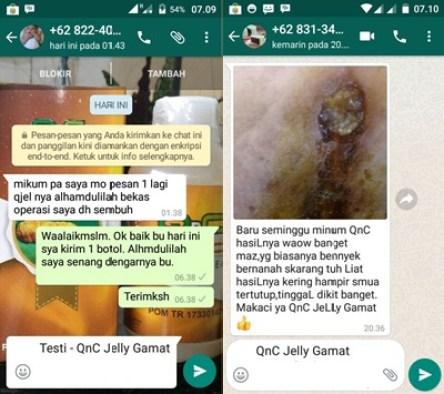 Obat Luka Robek di Lutut dan Kepala Yang Sudah Bernanah