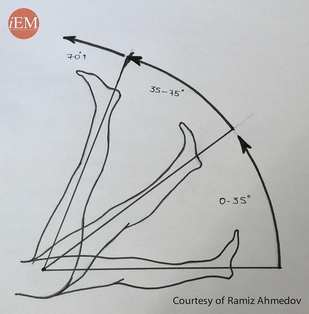 772.2 - Figure 2. Straight leg raise test