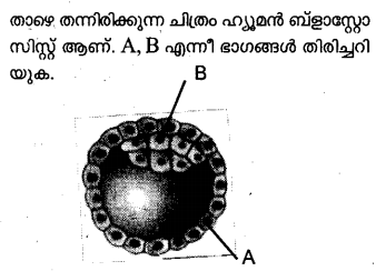 Plus Two Zoology Model Question Papers Paper 5.11