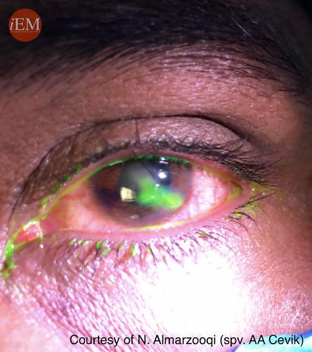 819.2 - eye penetran trauma 2 -siedel sign