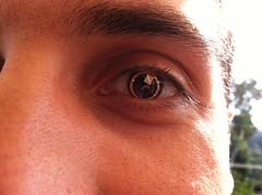 Intelligent contact lens - Kaweh Mansouri - TE...