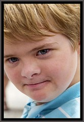 Ben is a Downs Syndrome Boy-1=