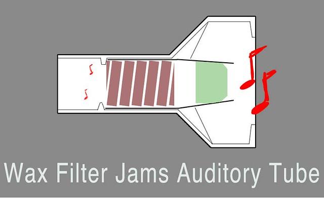 Shure-Wax-Filter-Jammed