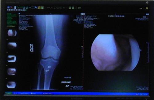 X-ray right knee