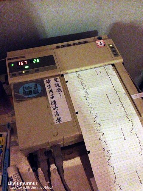 監測胎心音與宮縮的儀器,左邊是寶寶的胎心音,右邊是宮縮的頻率。可看出來我的宮縮很不強烈..
