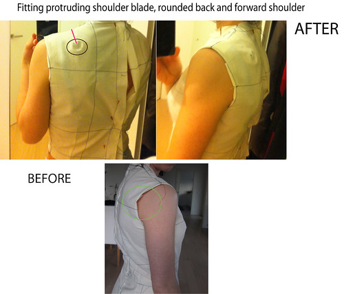 shoulder-blade-fitting