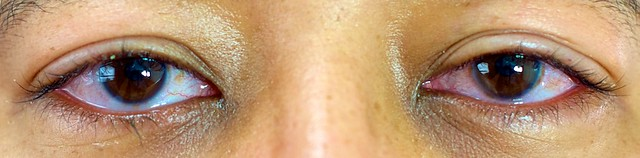 Olhos dia 1 - Primeiro dia após cirurgia PRK