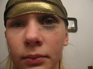 Princess gets another shiner (eyes open)