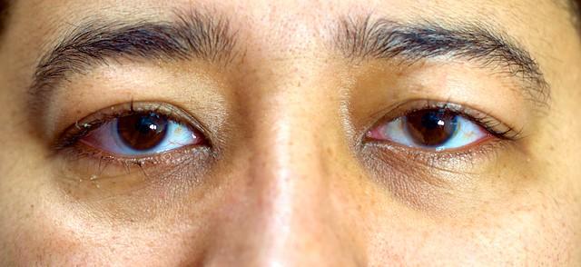 Olhos Dia 6 após cirurgia laser PRK de correção de miopia