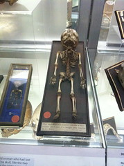 Foetal Skeleton at The Hunterian Museum