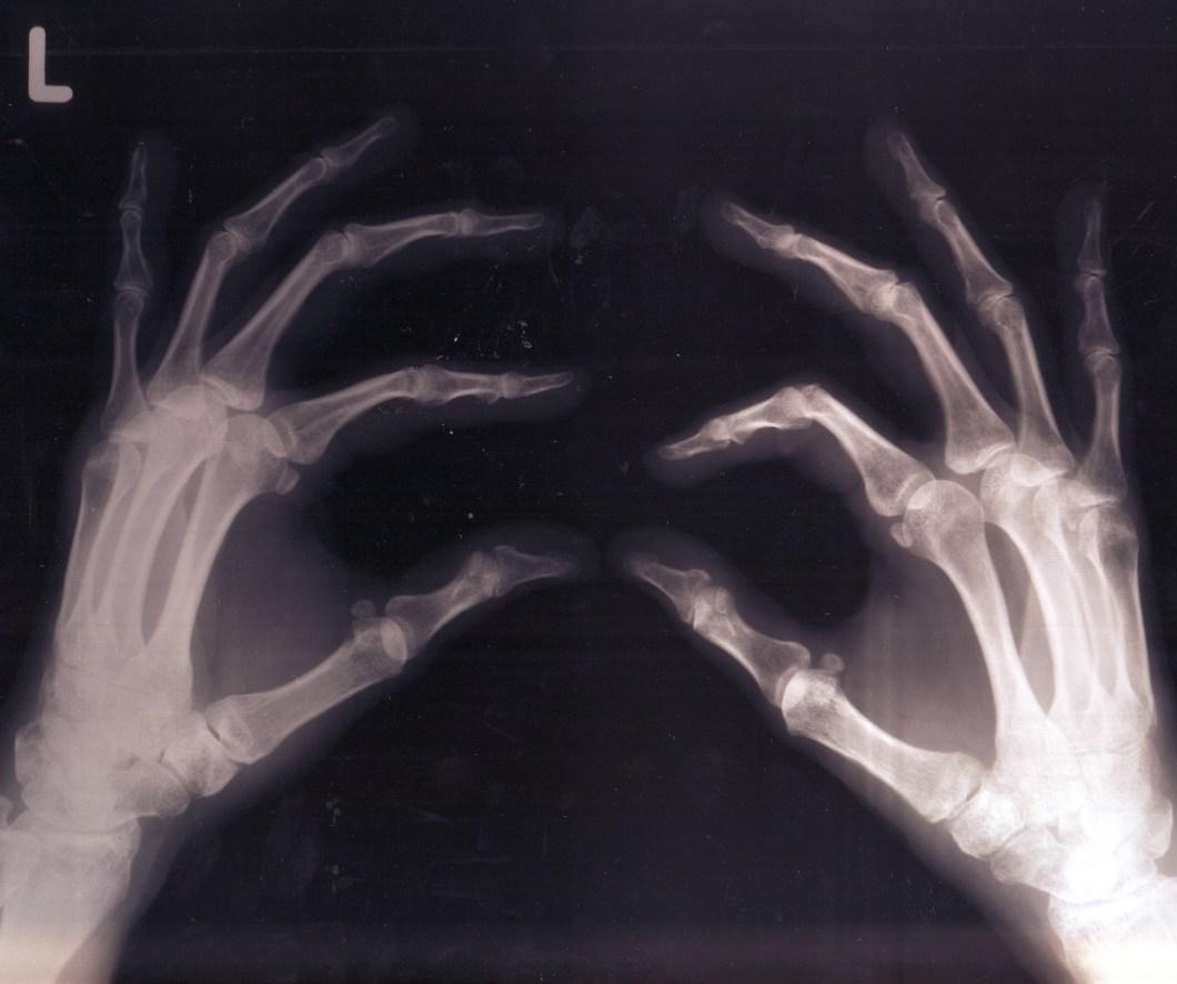 Foto gratis de una radiografía de manos
