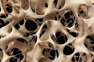 Industria farmacéutica avanza contra la osteoporosis