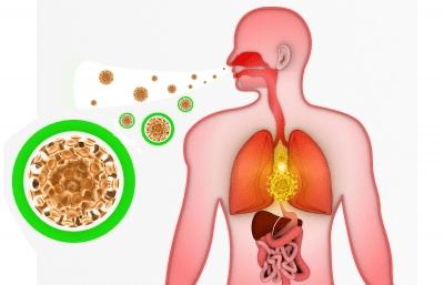 virus del resfriado