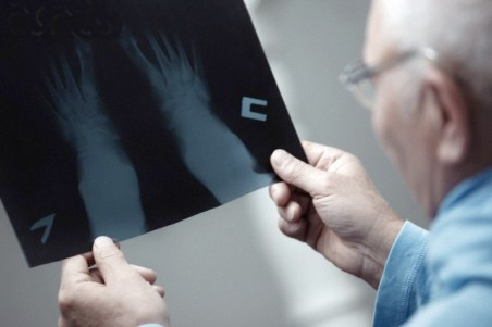 Senior doctor holding and testing X-ray photograph --- Image by © Arman Zhenikeyev/Corbis