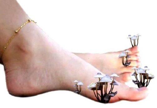 грибки на ногтях