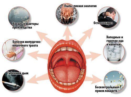 Локальные причины тонзилита хронического