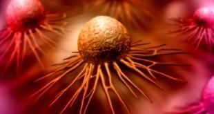 Obat Baru Ini Prospektif Untuk Kanker yang Gagal Kemoterapi dan Radioterapi