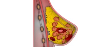 Obat Kanker Ovarium Lynpara (olaparib) Berpotensi Untuk Terapi Baru Kanker Payudara