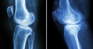 Obat Osteoporosis Berpotensi Membuat Tulang Lebih Rapuh Dalam Jangka Panjang