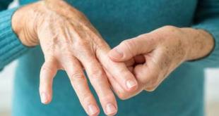 Baricitinib, Obat Baru Untuk Rheumatoid Arthritis
