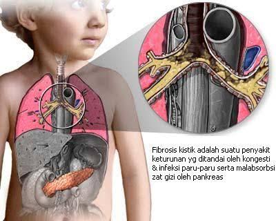 Obat Pertama Fibrosis Kistik Untuk Anak 2-5 Tahun Dipasarkan di AS