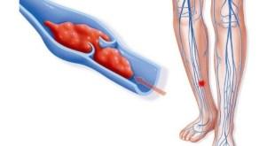 Natrium Dalteparin, Obat Antikoagulan Pertama Untuk Anak Tromboemboli Vena