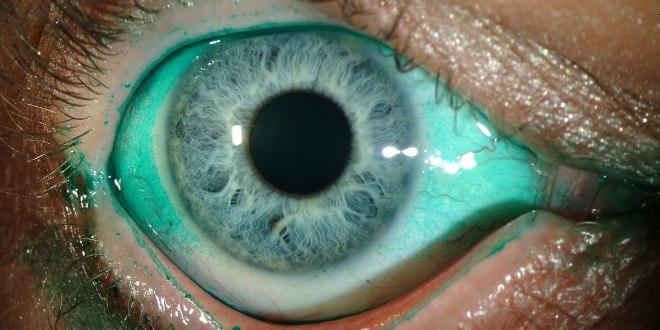 sindrom mata kering