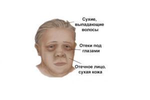 Thyroid pathology, myxedema