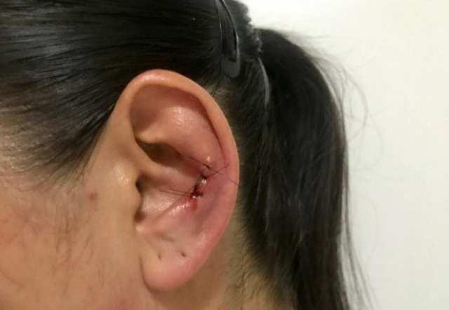 Policial foi atacada e está sendo submetida a tratamento com medicamentos antivirais - foto da PMSC
