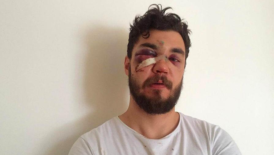 В Москве мужчину избили из-за попытки снять картонку с номера BMW с серией АМР