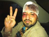 جوانان خشمیگن شرق تهران یک بسیجی فضول محله را به شدت کتک زدند
