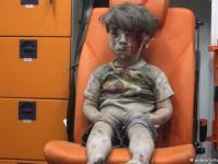 عکس روز: عکسهایی تکان دهنده از یک پسربچه نجات یافته در حلب