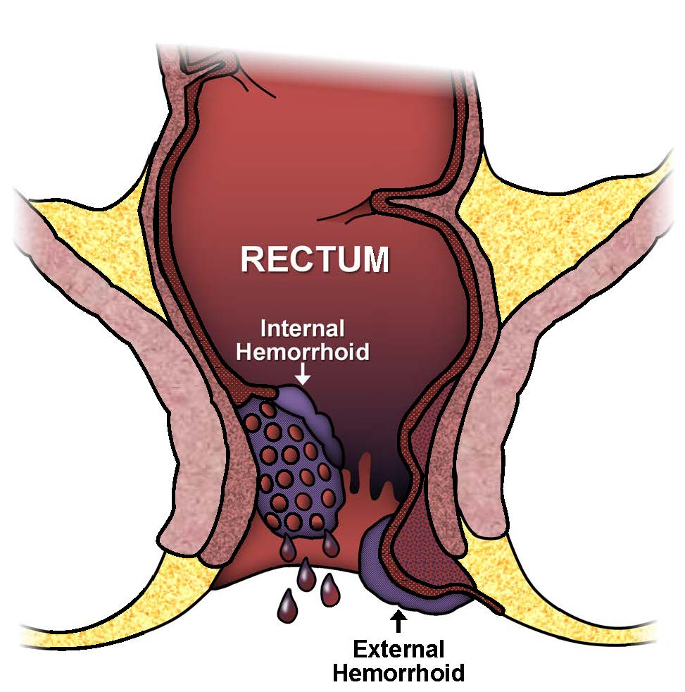 Exam Hemorrhoids Write Rectal