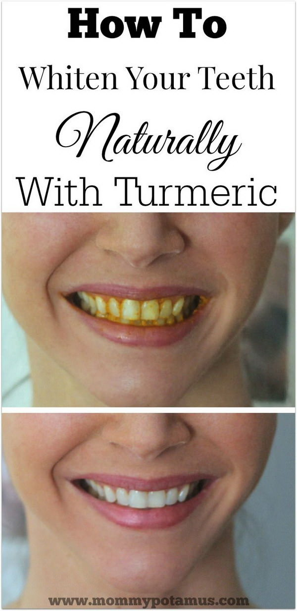 15 NATURAL Ways To Whiten Your Teeth Homemade Teeth